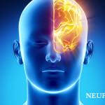 Neurology Varanasi Hospital