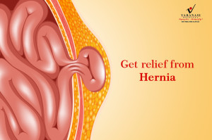 Hernia Treatment