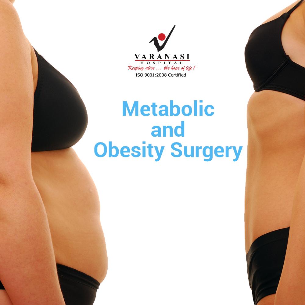 Obesity Varanasi