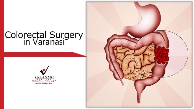 colorectal surgery Varanasi