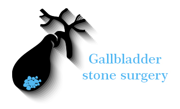 laparoscopic gallbladder surgery