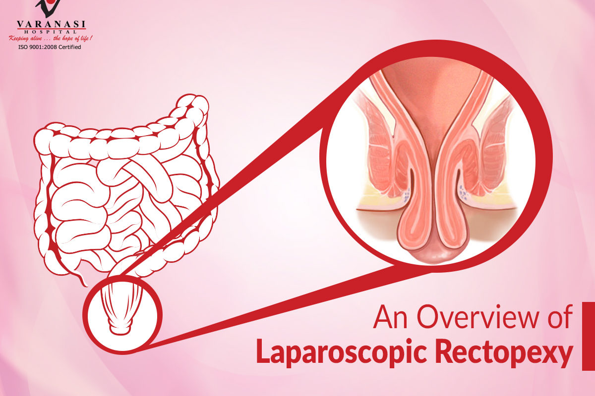 Laparoscopic Rectopexy