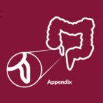 Appendix Surgery Varanasi