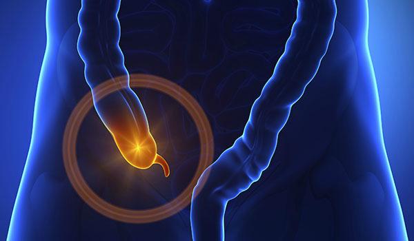 appendix surgery in Varanasi