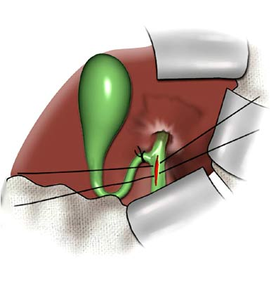 Common Bile Duct Exploration