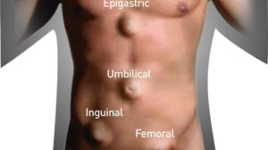 Epigastric Hernia and Other