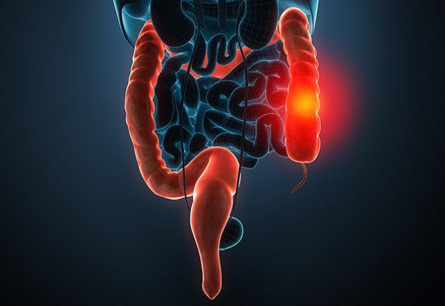 Internal Hemorrhage