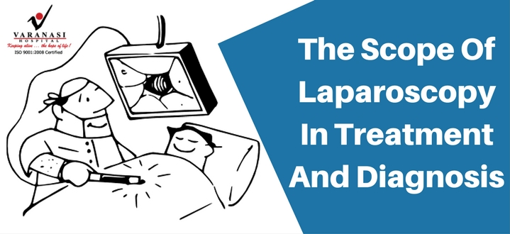 Laparoscopic Treatment