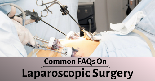 Laparoscopic Surgery Varanasi