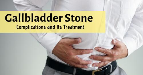 Gall Bladder Stone Surgery