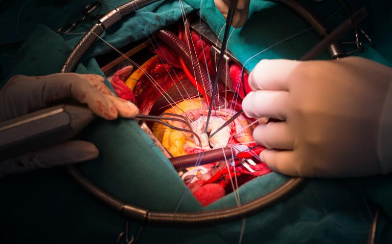 Open Gall Bladder Stone Surgery