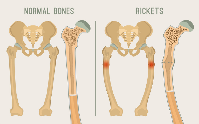 To protect the bones from rickets