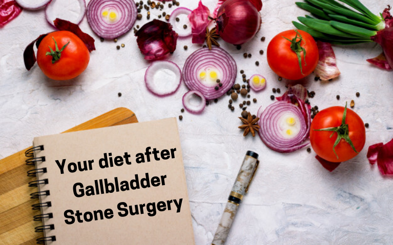 Cholecystectomy_ Your diet after Gallbladder Stone Surgery